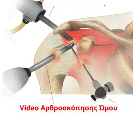 arthroskopisi-omou-video